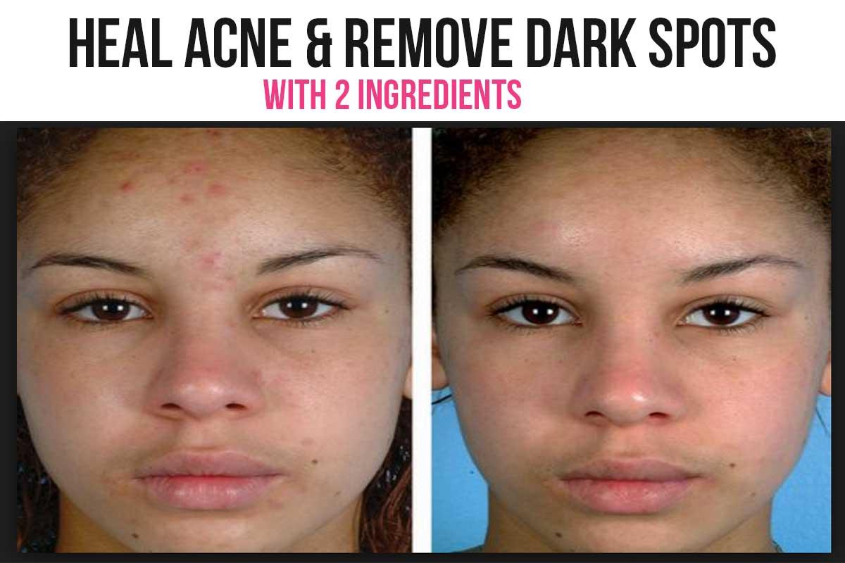 lemon to lighten dark spots