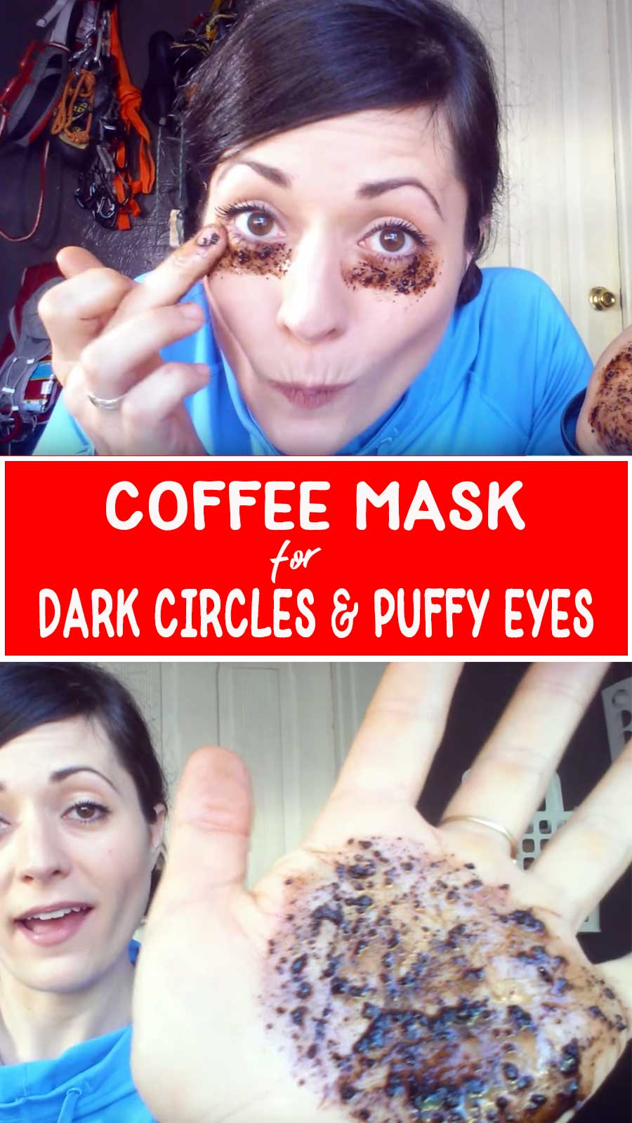 how to get rid of dark eye circles