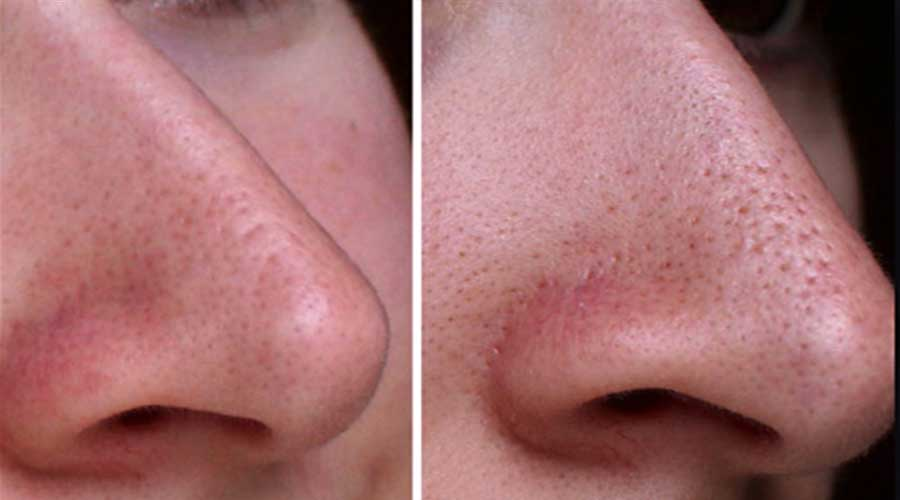 Shrink pores on nose